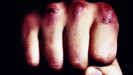 В Мангистау 33-летний мужчина во время ссоры выбил глаз и разбил голову своему знакомому